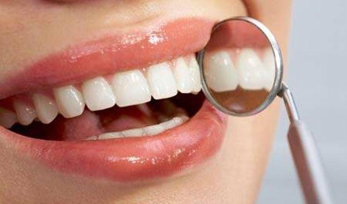 De ce sa ai dintii albi?